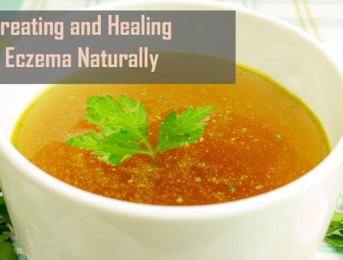 Treating Eczema Naturally Diet